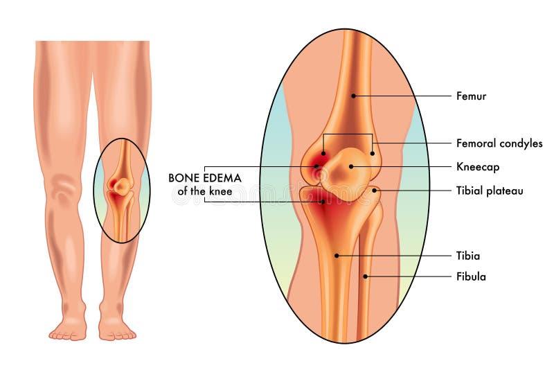 Medizinische Illustration des Knochenödems auf Knie stock abbildung