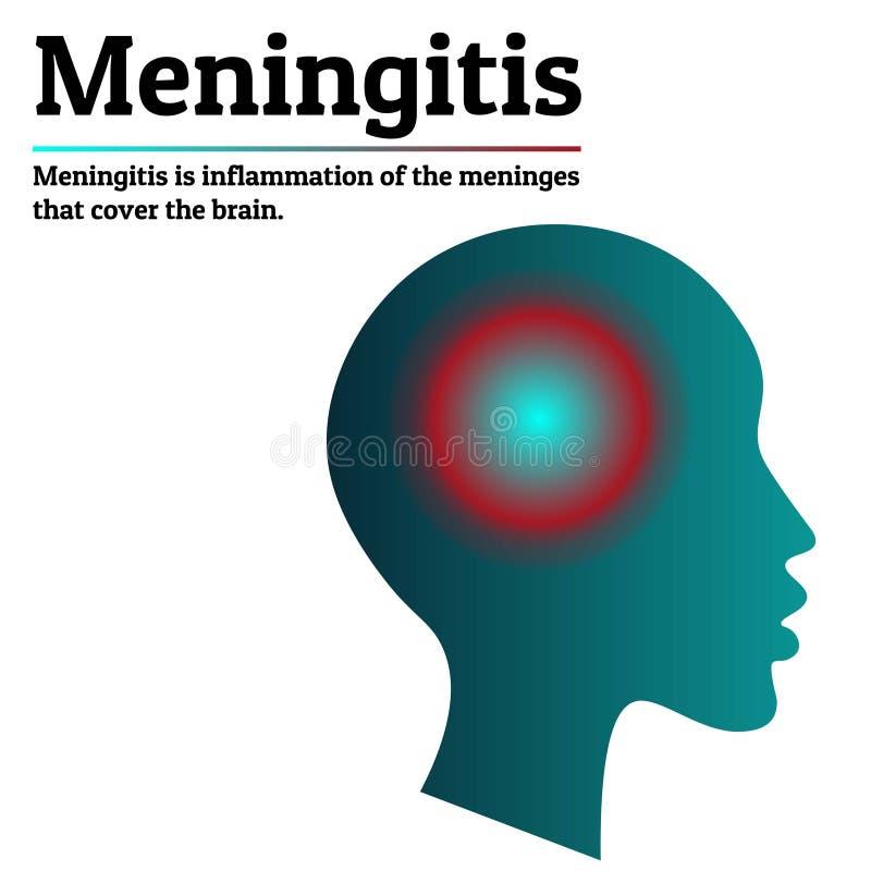 Medizinische Infographic-Schablone Meningitis - Gehirn meninges Entzündung Menschliches Hauptschattenbild mit Entzündung vektor abbildung