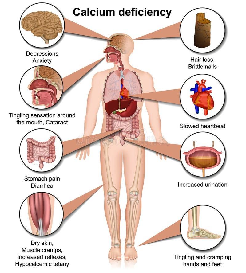 Medizinische Vektorillustration des Kalziummangels lokalisiert auf dem weißen Hintergrund infographic vektor abbildung