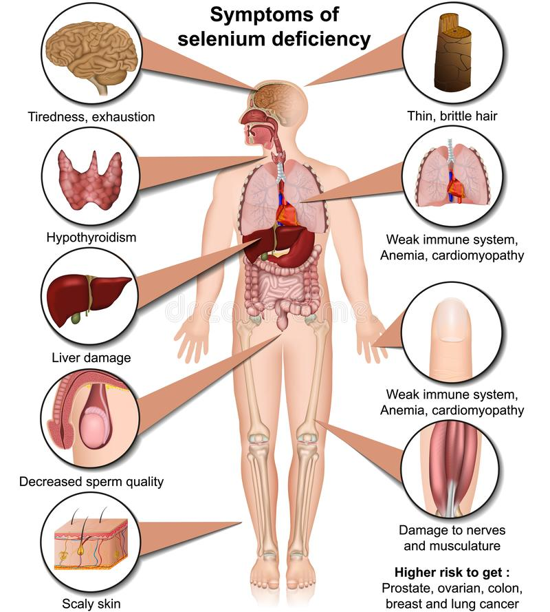 Medizinische Vektorillustration des Selenmangels lokalisiert auf dem weißen Hintergrund infographic lizenzfreie abbildung