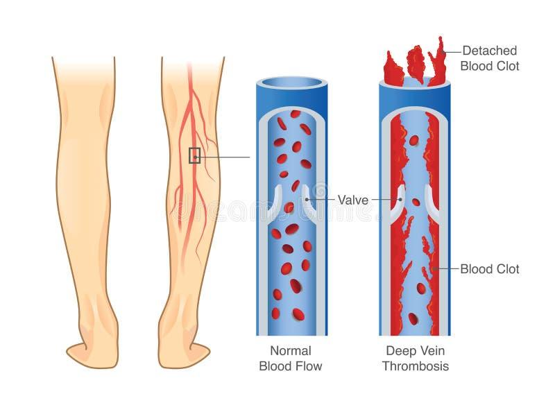 Medizinisches Diagramm der tiefen Ader-Thrombose am Beinbereich lizenzfreie abbildung