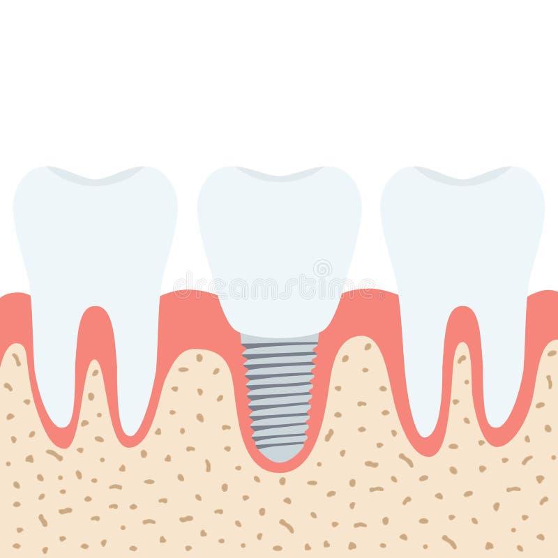 Medizinisches Gebiss Menschliche Zähne, Zahnarztimplantat In Der ...