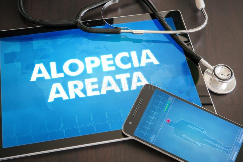 Medizinisches Konzept der Diagnose des Alopecia areata (Haut- Krankheit) an lizenzfreies stockbild