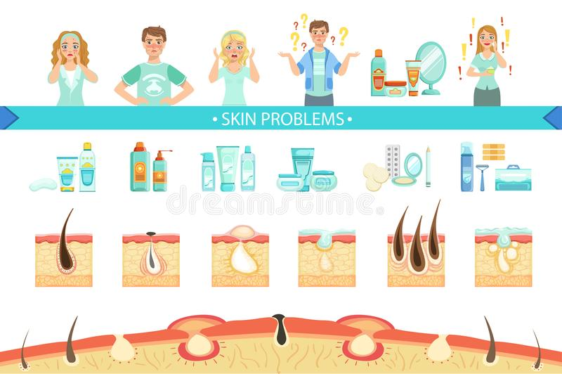 Medizinisches Plakat Haut-Probleme Infographic Karikatur-Art-Gesundheitswesen-Akne-Frage-Informations-Illustration vektor abbildung