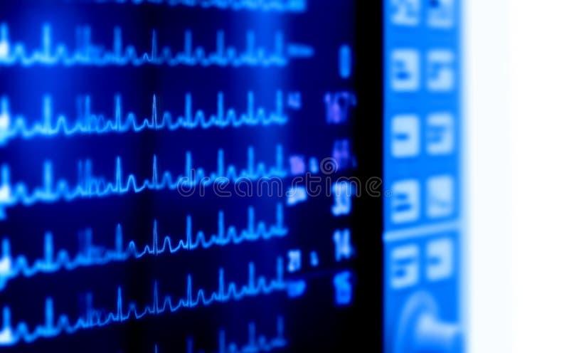 Download Medyczni Monitorów Wskaźniki Sercowa Aktywność Obraz Stock - Obraz złożonej z elektryczny, szpital: 57659509