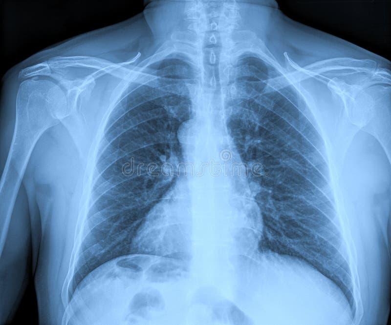 Medyczni promieniowania rentgenowskie obraz royalty free