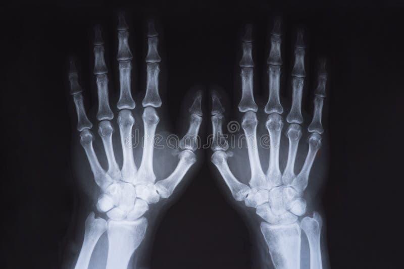 Medyczny x promień wręcza wizerunek zdjęcie stock
