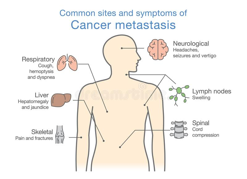 Meeste gemeenschappelijke plaatsen en de symptomen van Kankermetastase royalty-vrije illustratie