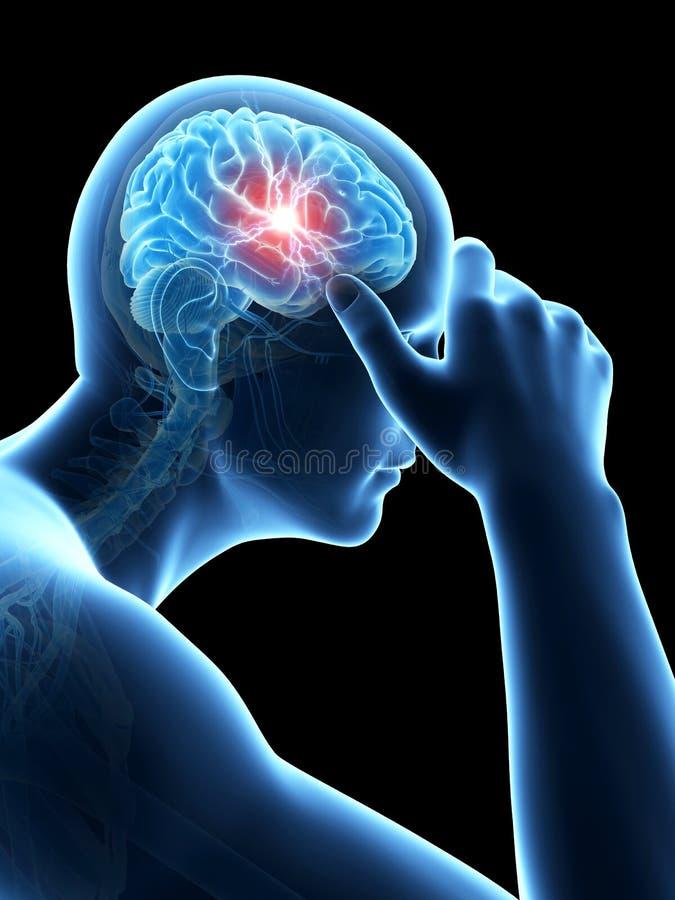 Megrim/dolor de cabeza libre illustration