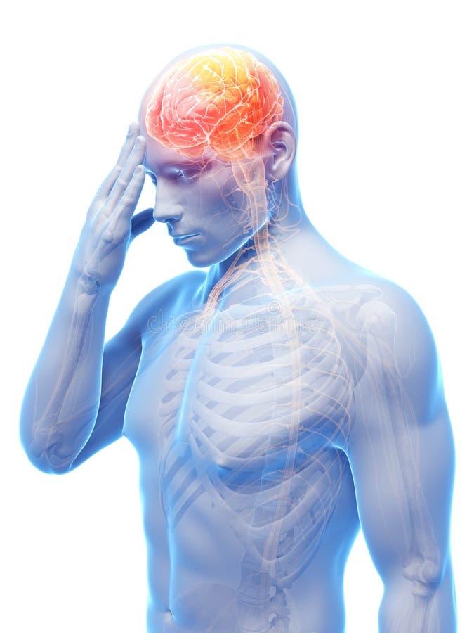 Megrim/migrena ilustracji