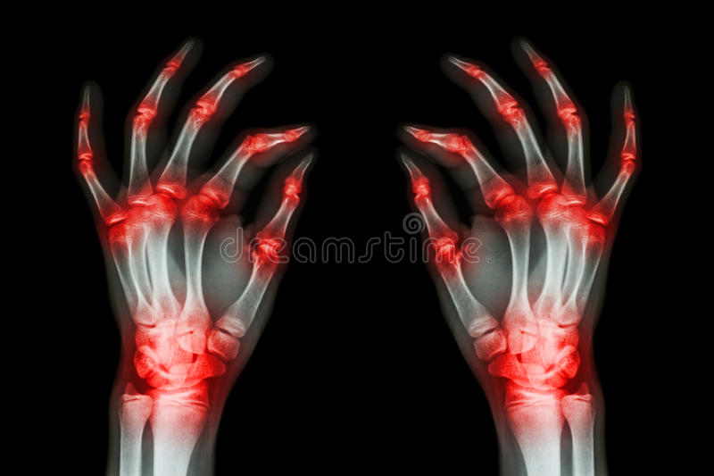 Mehrfache gemeinsame Arthritis beide Erwachsenhände (Gicht, rheumatisch) auf schwarzem Hintergrund stockbilder