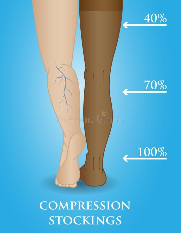 Meia médica da compressão ilustração do vetor