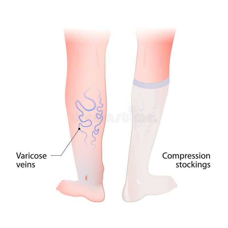 Meias da compressão para as veias varicosas ilustração do vetor