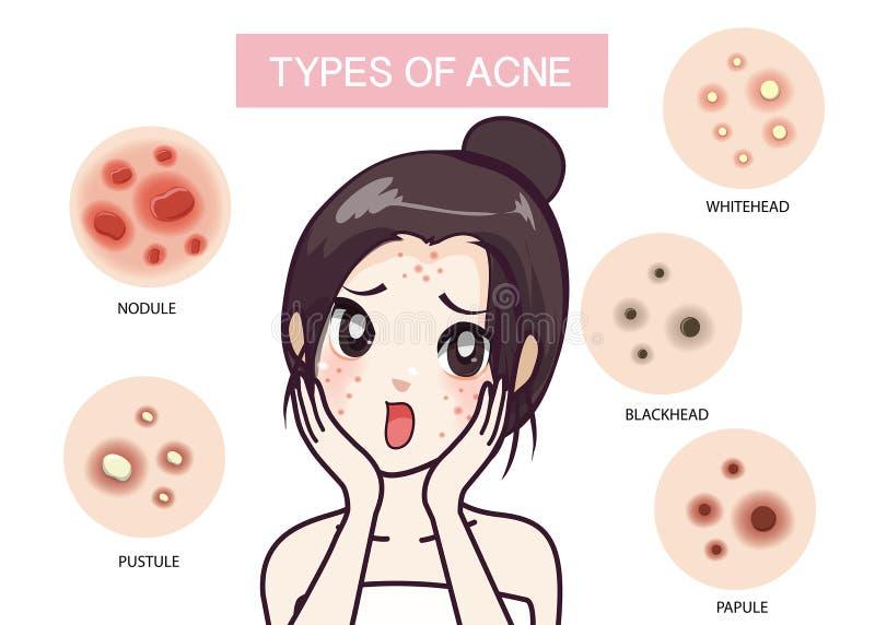 Meisje en type van acne royalty-vrije illustratie