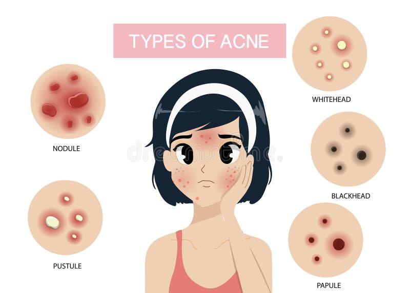 Meisje en Types van acne stock illustratie
