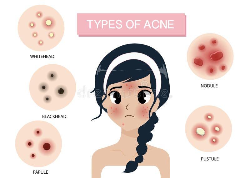 Meisje en Types van acne royalty-vrije illustratie