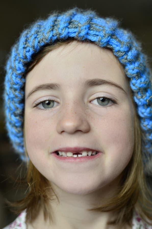 Meisje Glimlachend Ontbrekend Front Tooth royalty-vrije stock afbeelding