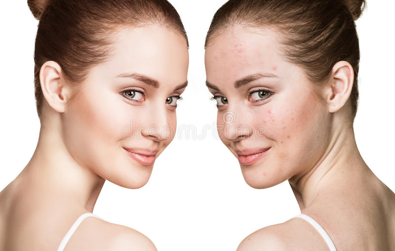 Meisje met acne before and after behandeling royalty-vrije stock foto