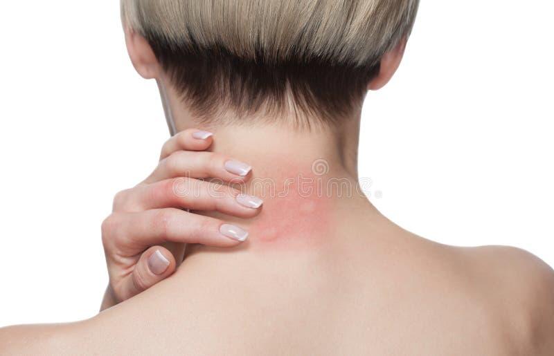 Meisje met blond haar, die met zijn achter gedraaide en krassende gebeten, rode, gezwelde halshuid zitten van mugbeten in de zome royalty-vrije stock fotografie