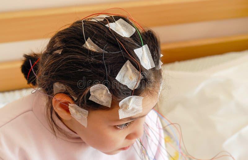 Meisje met EEGelektroden in bijlage aan haar hoofd voor medische test stock afbeeldingen