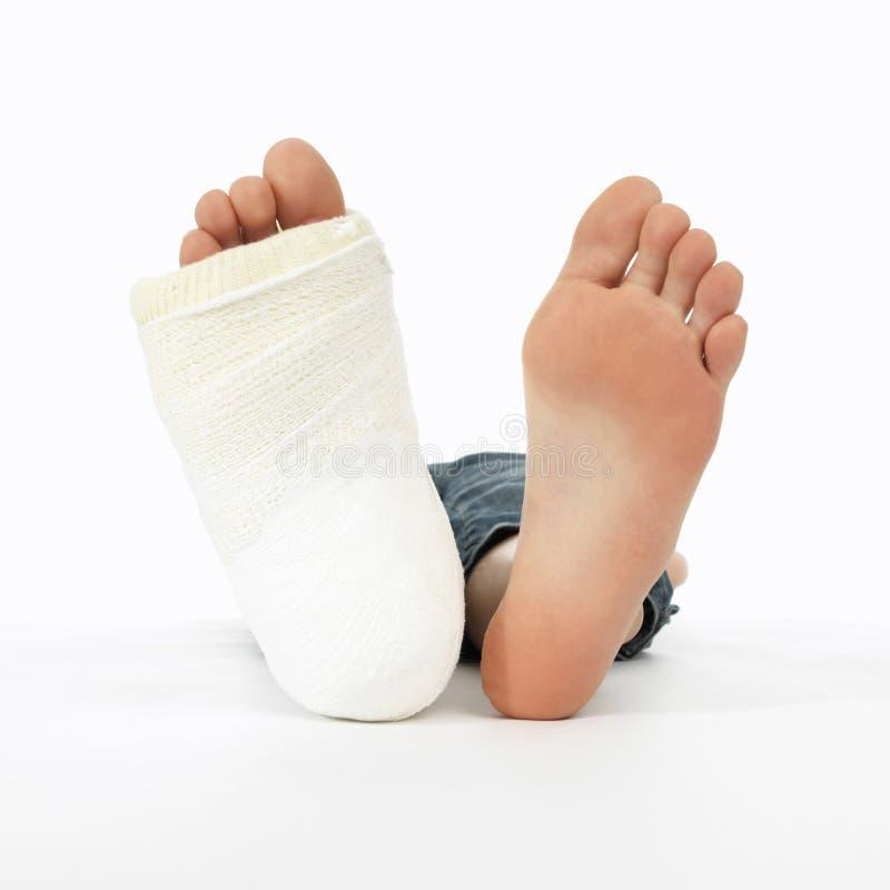Meisje met een gebroken been royalty-vrije stock foto's