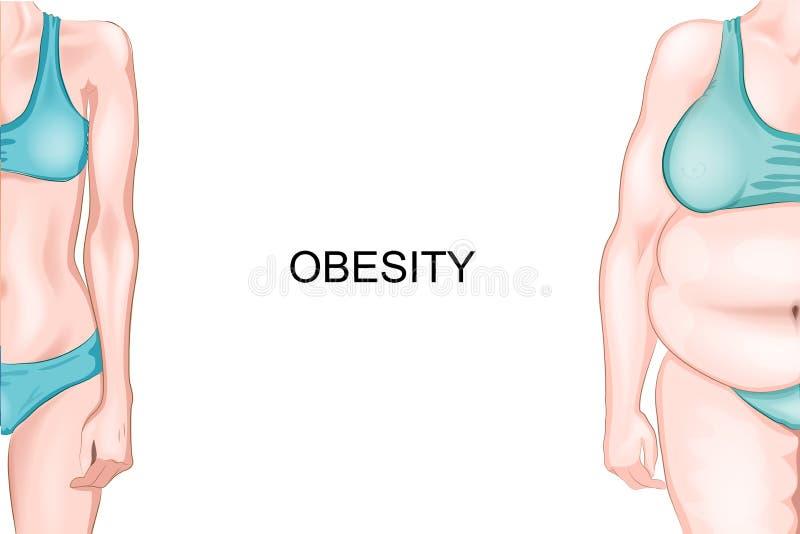 Meisje met normale gewicht en zwaarlijvigheid stock illustratie