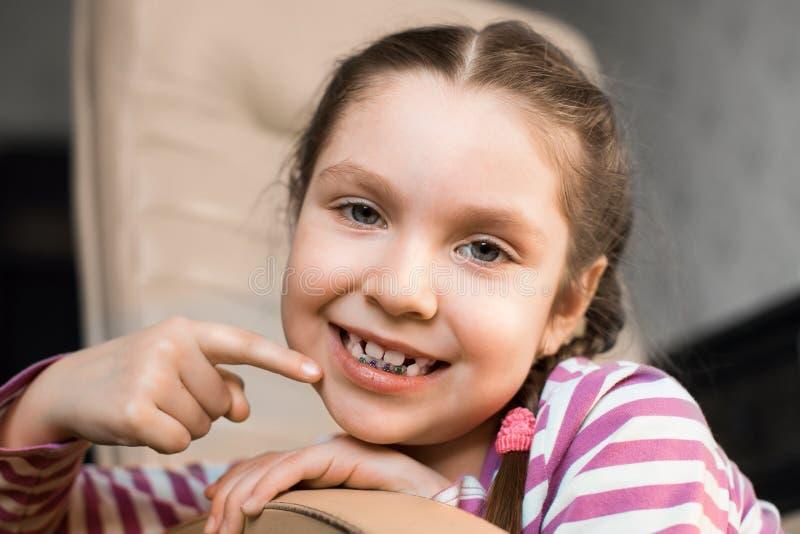 Meisje met tandsteunen royalty-vrije stock fotografie