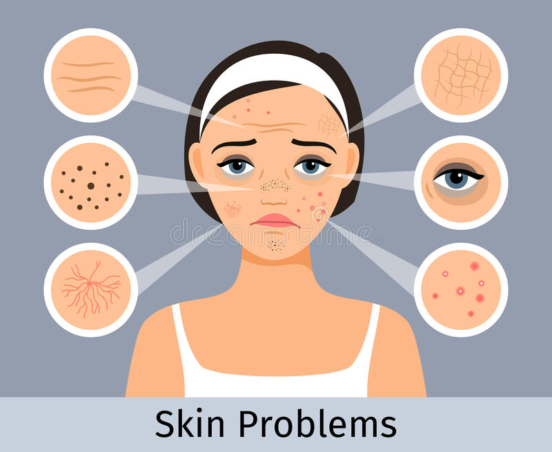 Meisjesgezicht met huidproblemen royalty-vrije illustratie