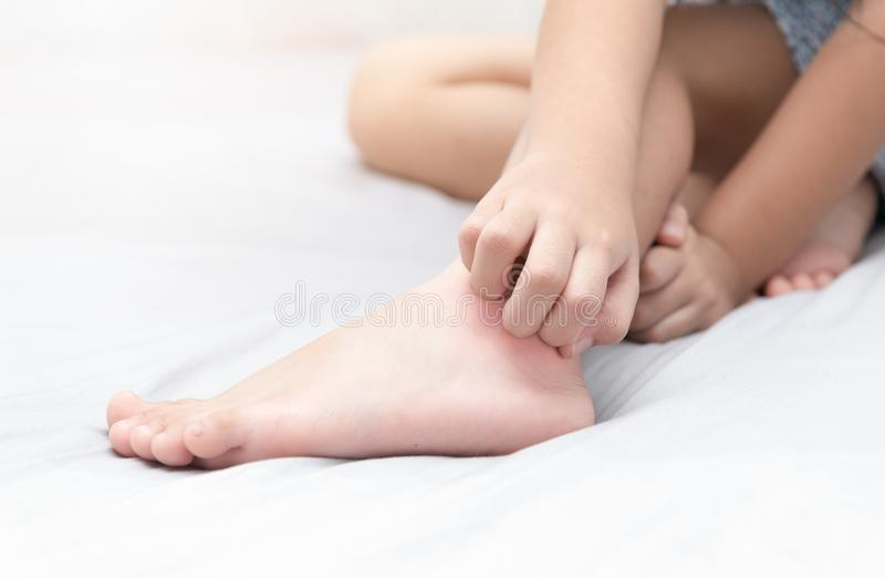 Meisjeskras de jeuk met hand op bed stock foto