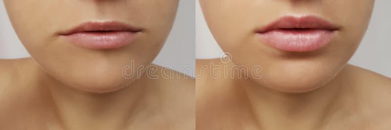 Meisjeslippen, spuitinjectie, de correctie van de lippenvergroting before and after procedurecollageen s royalty-vrije stock foto