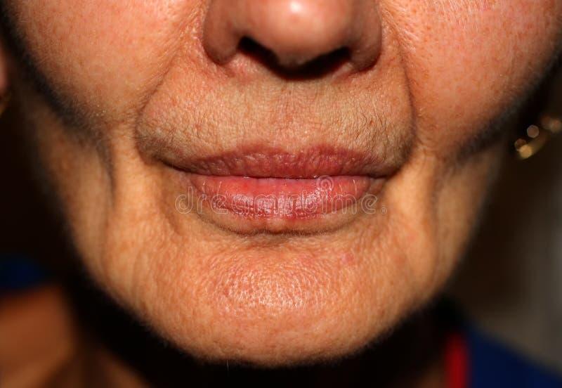 Mejillas hundidas Dobleces nasolabiales en cara arrugas fotografía de archivo libre de regalías