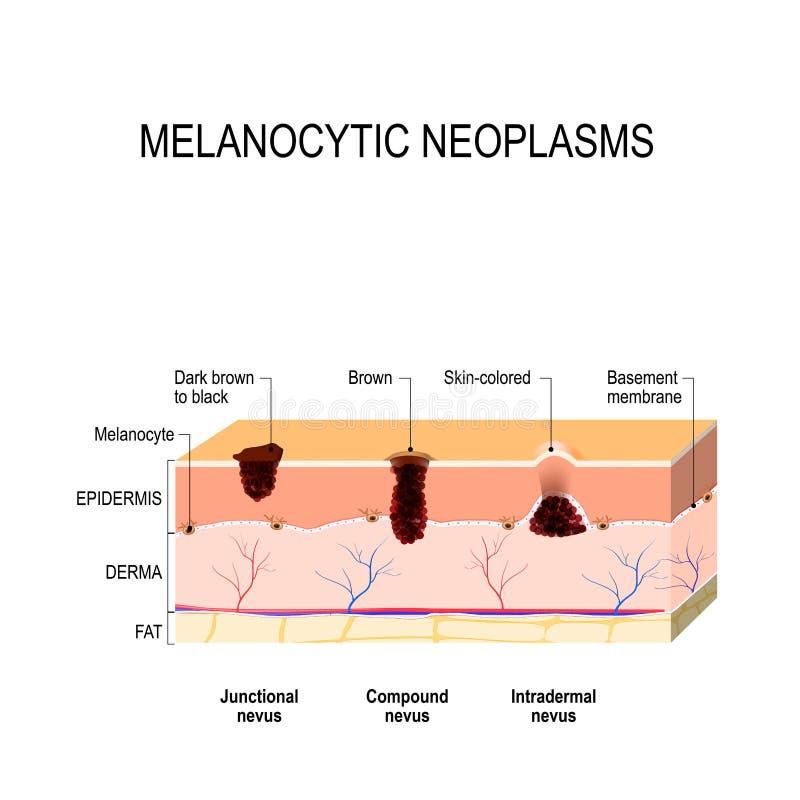 Melanocytic nevus skillnad mellan ett födelsemärke, en vågbrytare och en nevus royaltyfri illustrationer