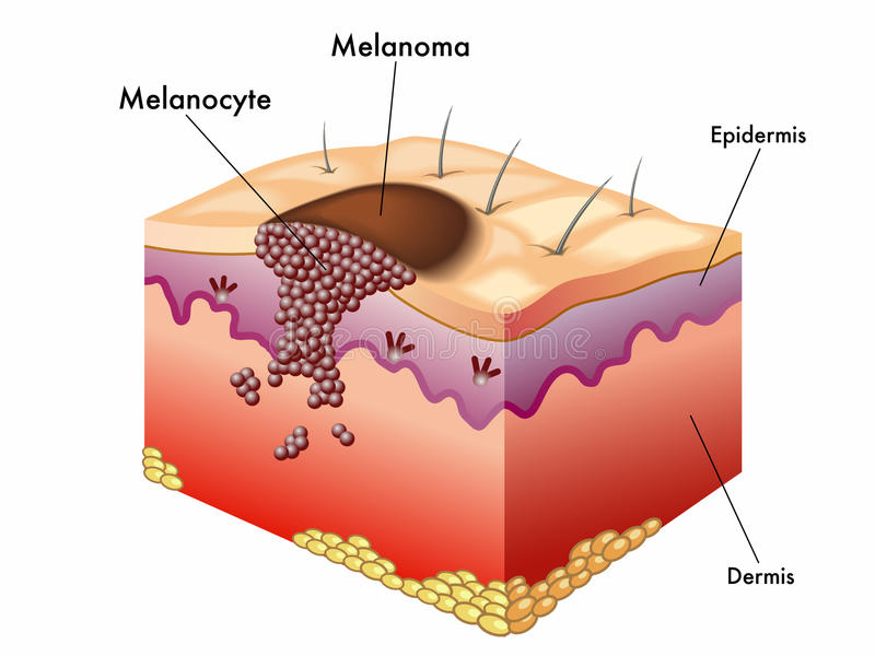Melanoma. Medical illustration of an Melanoma