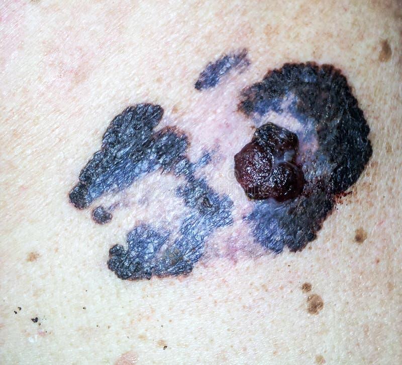 melanoma foto de stock royalty free