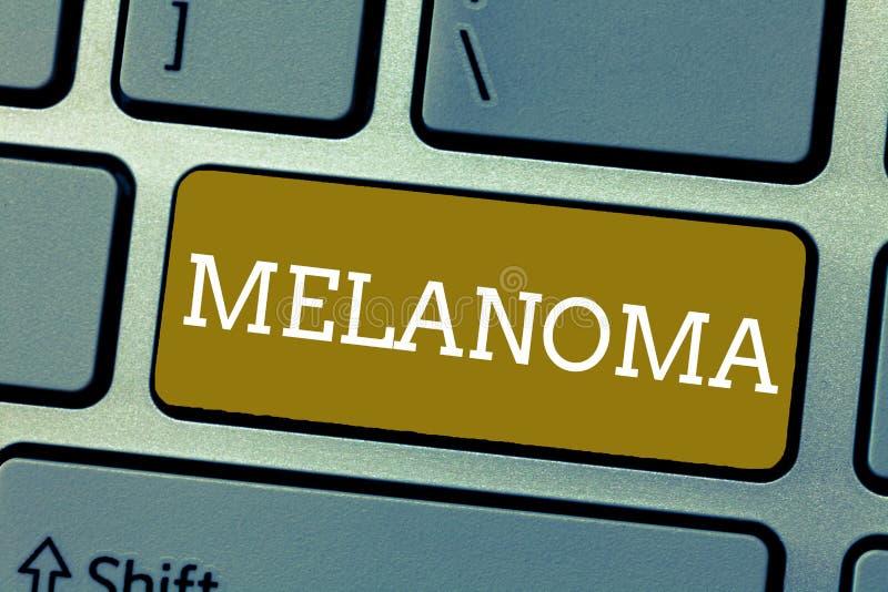 Melanoma del texto de la escritura Concepto que significa un tumor malo asociado a los topos benignos del cáncer de piel fotos de archivo