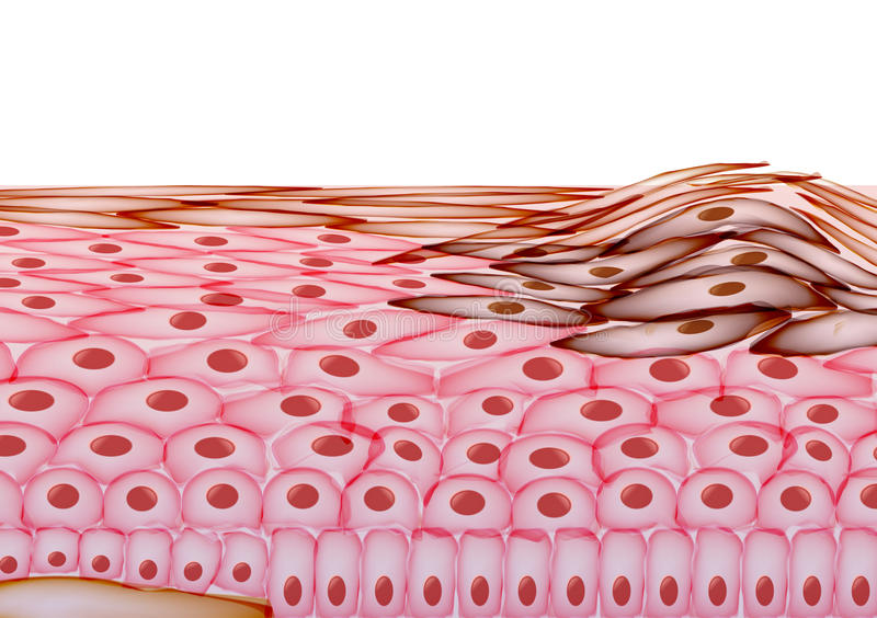 Melanoma in Layers of the Human skin, Cancer - Vector Illustration stock illustration