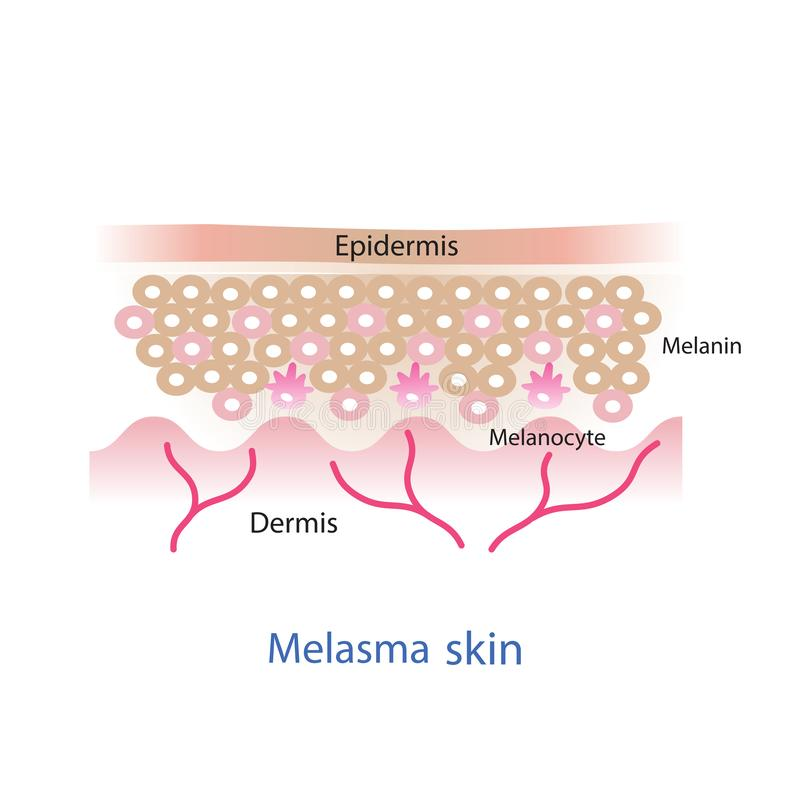 Melasma hudlager vektor illustrationer