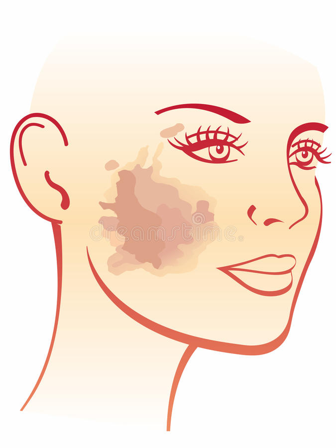 Melasma-Illustration lizenzfreie abbildung