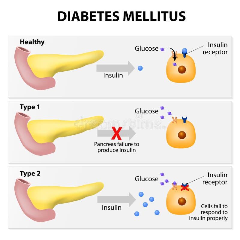 Mellitus diabetes stock illustratie
