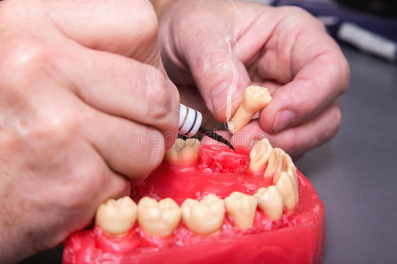 Men's hands working with electric waxer on red wax dental mode. Close up of men's hands working with electric waxer on a red wax dental model on a royalty free stock images