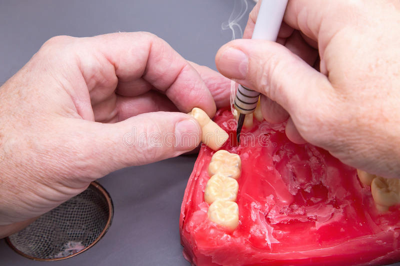 Men's hands working with electric waxer on red wax dental mode. Close up of men's hands working with electric waxer on a red wax dental model on a royalty free stock photo