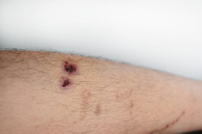 Men are disease diabetic. Fresh wound caused by accident will disappear slowly. Fresh wound caused by accident will disappear slowly. Because men are disease royalty free stock photography