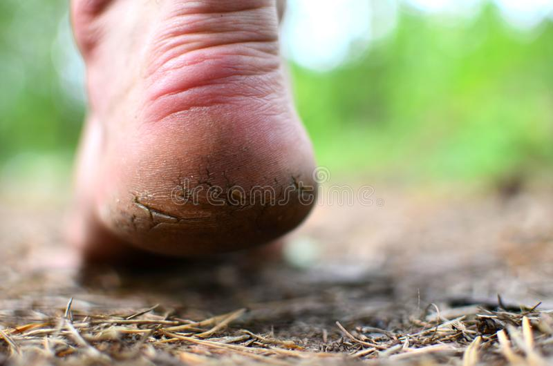 Men`s foot with rough skin and a dry heel with many cracks. The concept of health problems, poor self-care. Monitor feet skin condition to prevent skin stock image