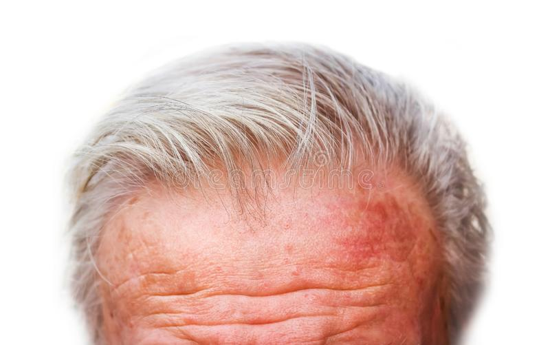 Men `s forehead wrinkles and going to gray hair isolated on white background. Seniors stock photography