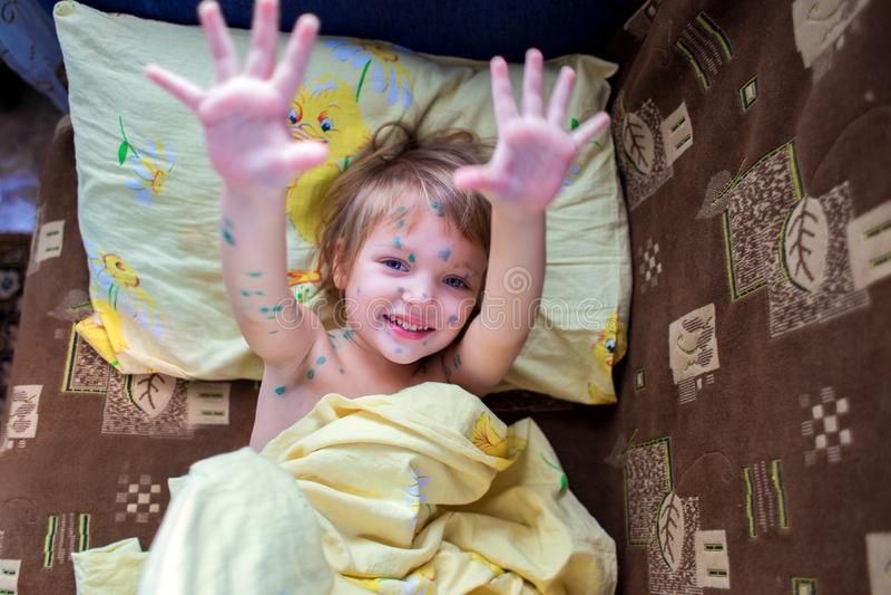 A menina alegre doente com mentiras da catapora em uma cama e nas palmas das mostras A criança é espalhada com verde brilhante foto de stock