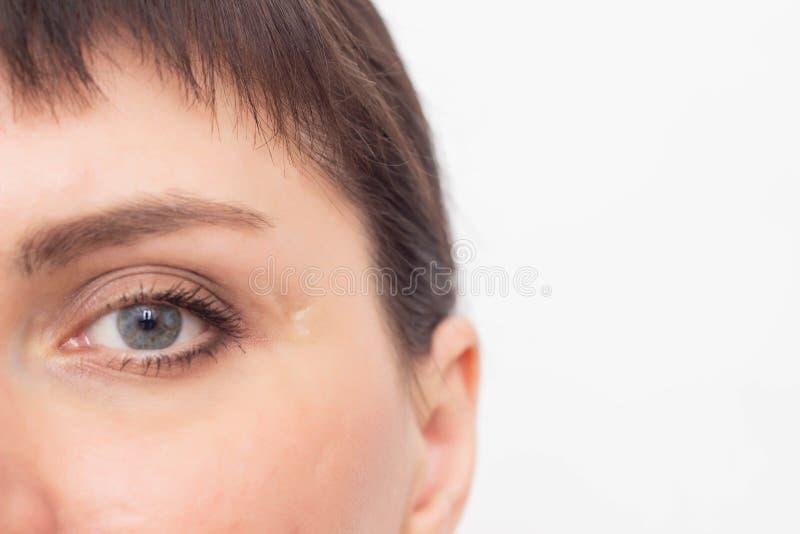 Menina bonita com uma cicatriz na cara perto do templo e dos olhos, cicatriz na pele, close-up da cicatriz, espaço da cópia, medi fotografia de stock