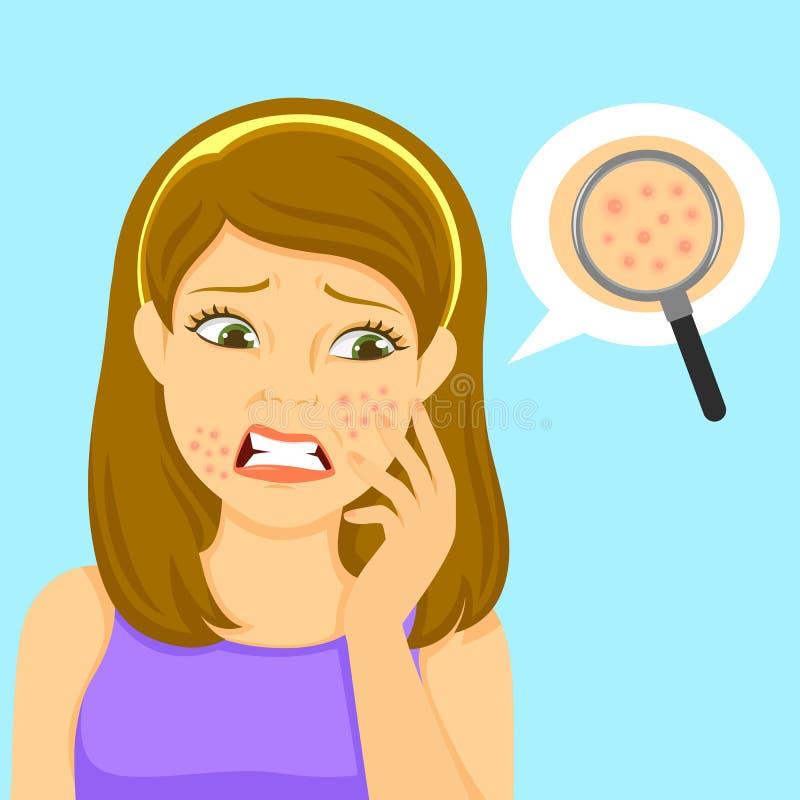 Menina com acne ilustração royalty free
