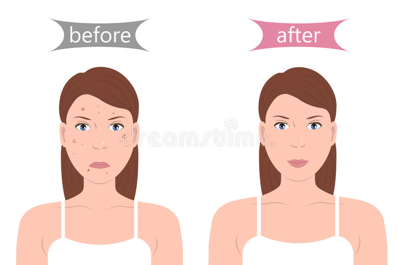 Menina com acne antes e depois ilustração do vetor