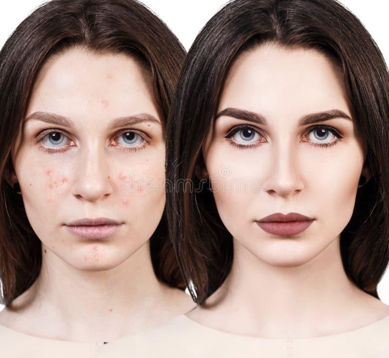 Menina com acne antes e depois do tratamento imagem de stock
