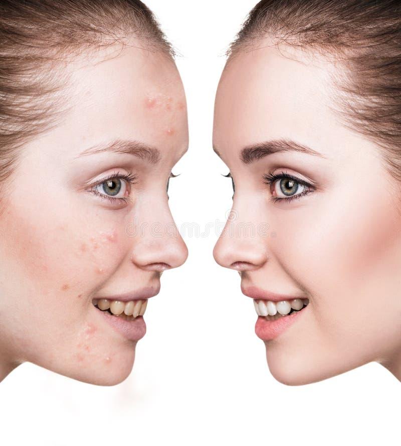 Menina com acne antes e depois do tratamento foto de stock royalty free